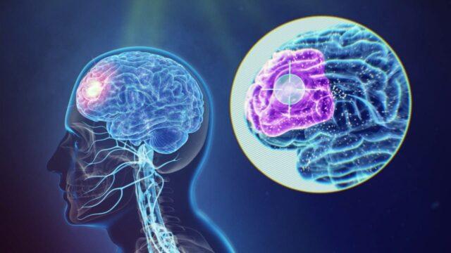 stimularea magnetica si depresia